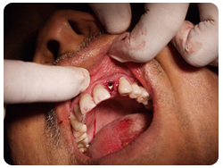 inserting the implant screw in patient's mouth