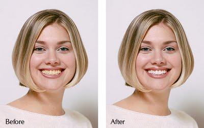 Teeth Whitening Mumbai – Treatment & Cost – Kadali Dental