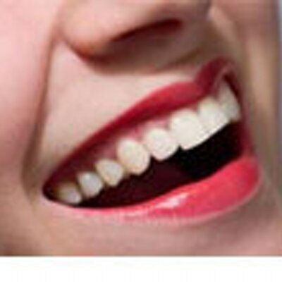 picture of teeth after a cosmetic procedure by a dentist