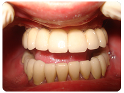 picture of patient's mouth after getting upper and lower full range dental implants