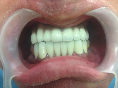 patient's picture after getting dental implants