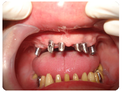 picture of patient's mouth showing multiple missing teeth