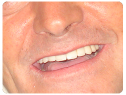 patient smiling after having full range dental implants